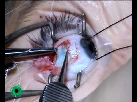 جراحی انحراف چشم