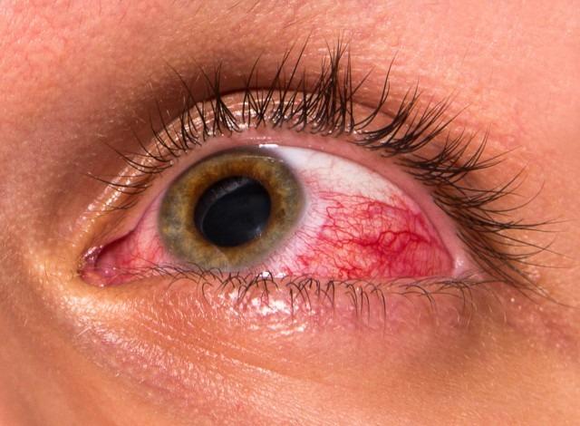 آسیب های چشمی