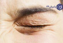 لرزش چشم | علل ابتلا، پیشگیری و انواع درمان