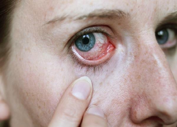 روش های پیشگیری و درمان حساسیت چشم