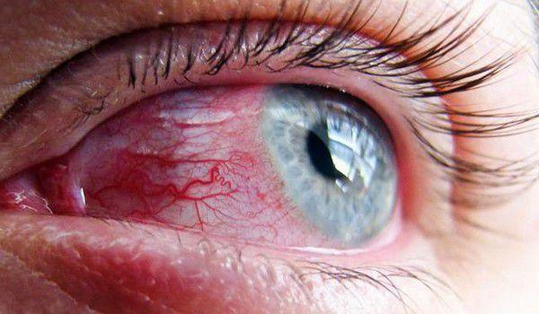 درمان التهاب چشم