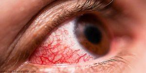 التهاب ملتحمه چشم