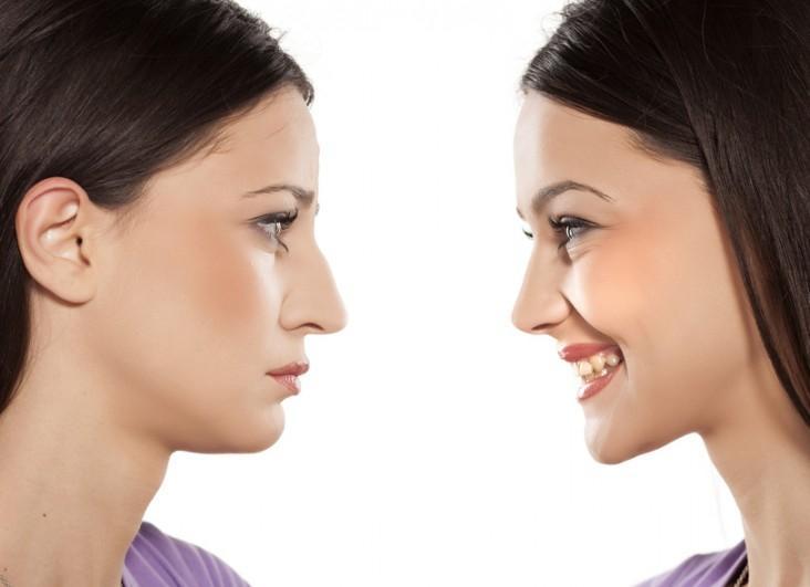 فواید عمل بینی استخوانی