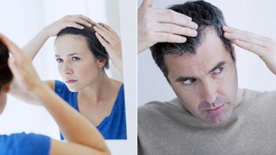 دلایل ریزش مو و درمان ها