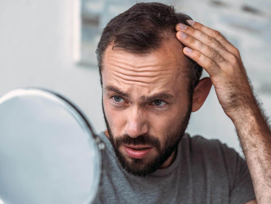 ریزش مو در اثر عوارض مصرف دارو