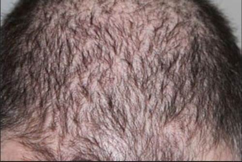 ریزش مو آناژن