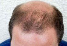 ریزش مو آندروژنیک (Androgenetic alopecia)