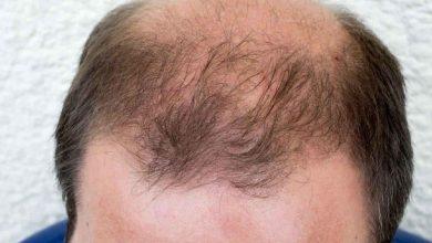 ریزش مو آندروژنیک