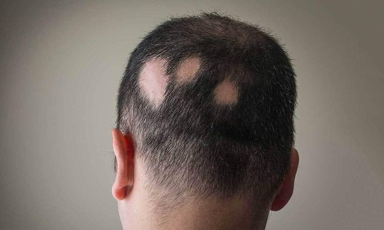 ریزش مو آره آتا یا آلوپسی آره آتا مدل دیگری از ریزش مو است که هرچند نسبت به مدلهایی مثل ریزش مو تلوژن افلوویوم و ریزش موی آندروژنیک، رواج کمتری دارد اما مقابله با آن، مستلزم دخالت فوری یک متخصص پوست است. این همان مدلی است که با نام طاسی سکهای یا ریزش موی سکهای نیز شناخته میشود.