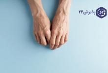 ناخن و انواع بیماریهای ناخن که باید بشناسیم