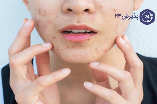 انواع بیماریها و آسیبهای پوستی
