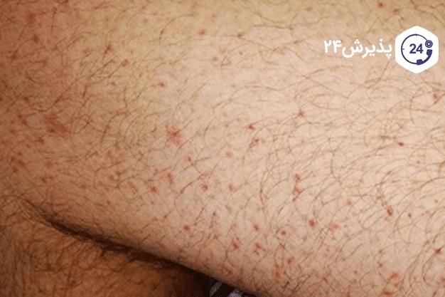 تاثیرات کرونا بر پوست