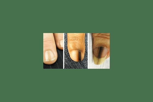 ایجاد خطوط طولی روی ناخنها
