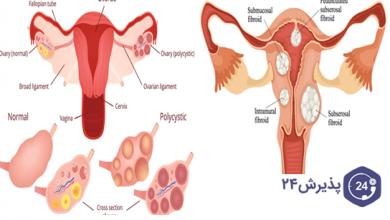 تصویر از تفاوت فیبروم و کیست و نحوه درمان آنها