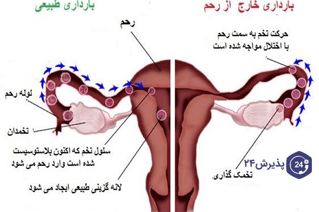 تصویر از بارداری خارج از رحم چیست؟و دلیل آن چیست؟