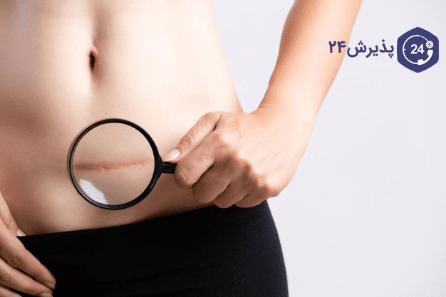 تصویر از درمان و پیشگیری از کیست تخمدان