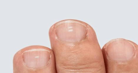 ایجاد لکههای سفید روی ناخنها