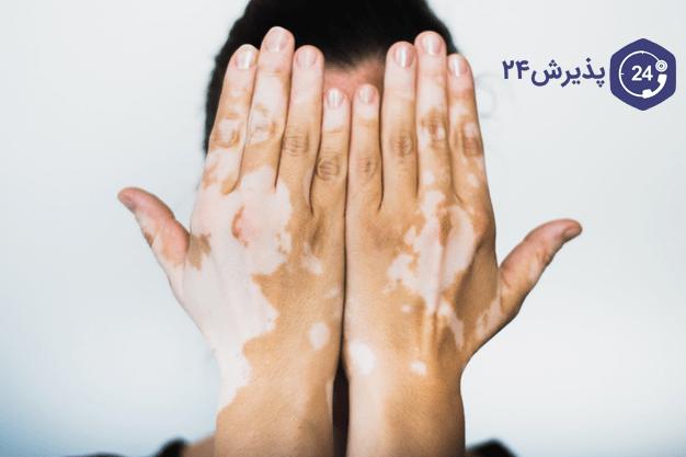 تصویر از برص | علائم، درمان و پیشگیری از آن