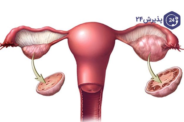 تنبلی تخم دان | علائم، دلایل ایجاد، پیشگیری و درمان | در رابطه با تنبلی تخم دان و نازایی چه می دانید؟ تنبلی تخم دان و بارداری چه ارتباطی دارند؟ سندرم تخمدان پلی کیستیک که معمولا با نام PCOS یا تنبلی تخمدان شناخته می شود، نوعی اختلال در سیستم غدد درون ریز است که زنان را در سال های باروری تحت تاثیر قرار می دهد.
