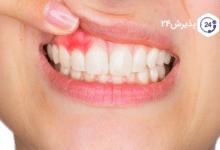 آبسه دهان | دلایل، پیشگیری و درمان