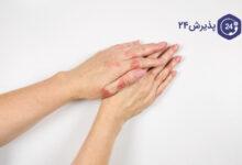 اگزما | علائم،علل ابتلا، راه های پیشگیری و درمان