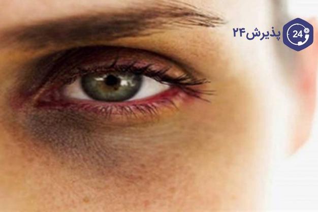سیاهی زیر چشم | دلایل و درمان | شاید یکی از اولین سوالاتی که ممکن است برای شما به وجود بیاید این باشد که چه زمانی می گویند سیاهی دور چشم غیر طبیعی است و دلیل بر بیماری است. برای رسیدن به این جواب قبل از هر چیز دلایل سیاهی اطراف چشم را مورد بررسی قرار می دهیم. پوست اطراف چشم نازک تر از سایر قسمت های بدن است. به همین دلیل سریع تر واکنش نشان می دهد. تفاوت رنگ اطراف چشم به میزان بسیار کم معمولا عادی است. اما در برخی موارد سیاهی دور چشم به وضوح دیده می شود و تفاوت رنگ آن بسیار زیاد است. یکی از نشانه های بسیاری از بیماری ها سیاهی اطراف چشم است. این گونه مشکلات بهتر است به صورت اصولی و توسط پزشک متخصص چشم شناسایی و برطرف شود. اما ما برای اینکه حس کنجکاوی شما را درک می کنیم در زیر برخی از دلایلی که ممکن است موجب سیاهی دور چشم شود را مورد بررسی قرار می دهیم.