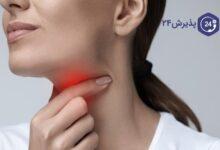ارتباط التهاب حلق با کرونا