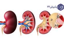 سنگ کلیه | علائم، علل ابتلا و بهترین راه های درمان