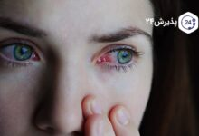 آنچه در مورد عفونت چشم نمیدانید