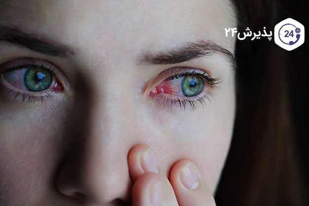عفونت-در-چشم