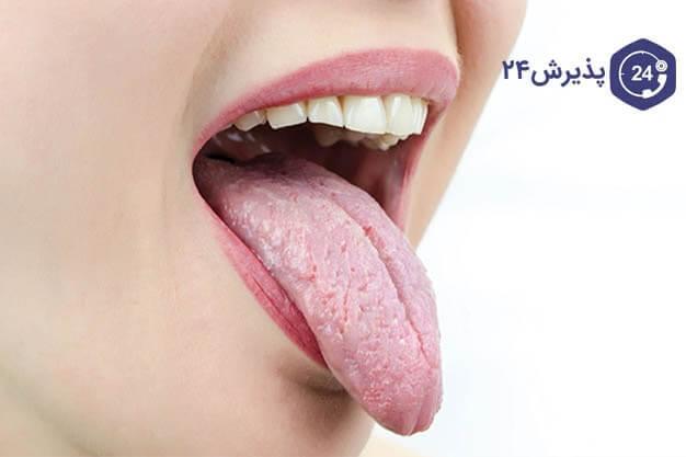 علائم خشکی دهان