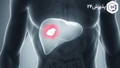 علائم-سرطان-کبد