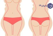پیکرتراشی و تناسب اندام | لیپوماتیک