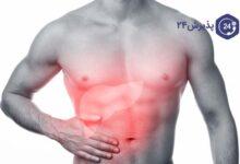 مسمومیت غذایی | انواع، علائم، پیشگیری و راه های درمان
