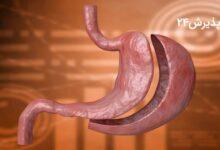 هر آنچه باید از جراحی اسلیو معده بدانید