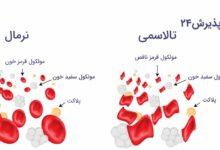 تالاسمی | علائم، علل ابتلا، پیشگیری و درمان