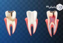 آبسه دندان | علل ابتلا، انواع آن، پیشگیری و درمان