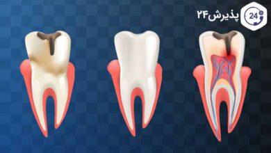 علل ابسه دندان