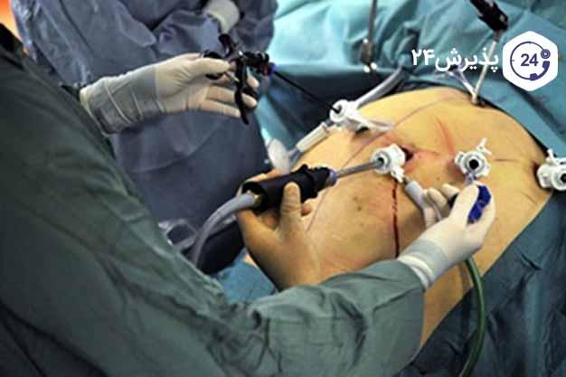 عکس عمل جراحی اسلیو معده