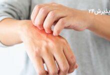 عفونت قارچی | انواع، علائم، علل ابتلا، پیشگیری و درمان