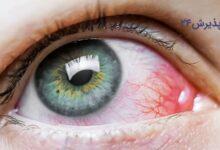 علت سوزش چشم و انواع راه های درمان آن
