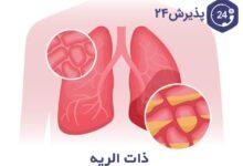 بیماری سینه پهلو یا ذات الریه | علائم، راههای درمان و پیشگیری