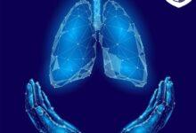 بیماری سل | انواع و درمان خانگی و دارویی