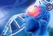 بیماری صرع | انواع، راه های پیشگیری و درمان