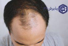 کاشت مو چیست؟ | بهترین روش های کاشت مو، مزایا و عوارض کاشت مو