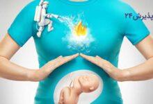 سوزش سر دل در بارداری | علل، علائم و راه های درمان