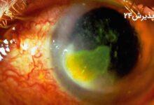 زخم قرنیه | علل، راه های تشخیص و درمان