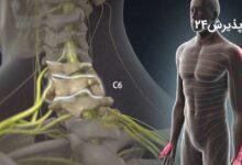 دیسک گردن | علائم، راه های تشخیص و درمان