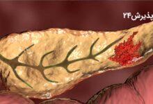 سرطان لوزالمعده | علائم تشخیص و راه های درمان