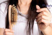 ریزش مو بعد از رژیم| بررسی علل و راه های جلوگیری از ریزش مو بعد از رژیم